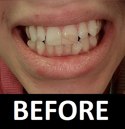 Invisalign-and-Two-Porcelain-Veneers-Before.JPG