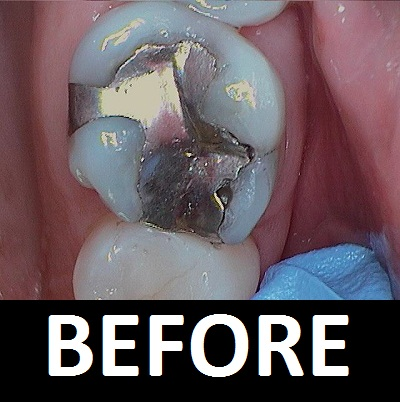 amalgam-filling-before.JPG