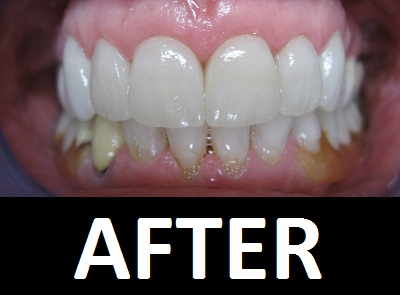 Teeth-Whitening-After.JPG