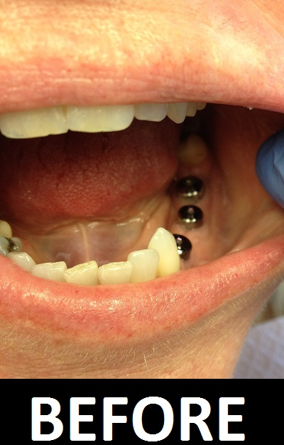Dental-Implant-Before.JPG