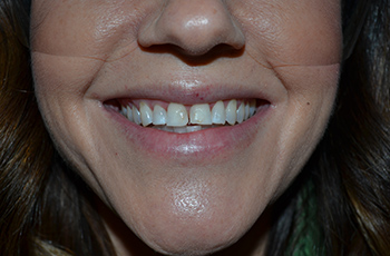 Porcelain-Crowns-Before-2.jpg
